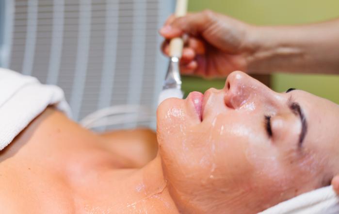 Chemický peeling tváre, starostlivosť o pleť, akné, kozmetika, alma care